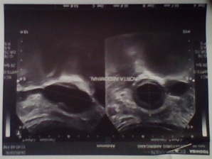 ecografia aorta